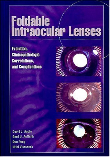 Foldable Intraocular Lenses: Evolution, Clinicopathologic Correlations, and Complications by David J. Apple MD (2000-07-06)