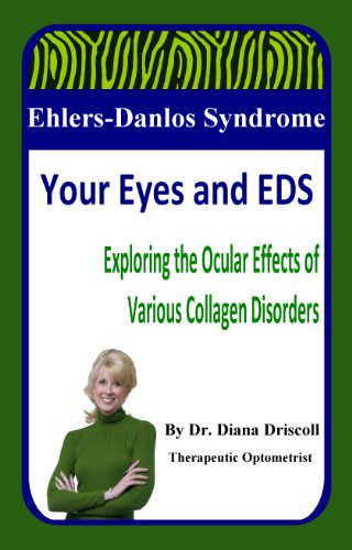 Ehlers-Danlos Syndrome: Your Eyes and EDS