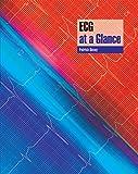 ECG at a Glance