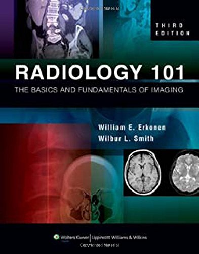 Download pdf radiology 101 the basics and fundamentals of of imaging audiobook online radiology 101 the basics and fundamentals of imaging review online radiology 101 the basics and fundamentals of imaging fandeluxe Choice Image