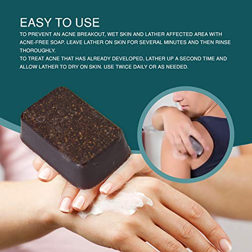 Buy product for acne scars black skin