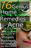 Blackhead Home Remedies 16 Genius Home Remedies for Acne: Natural Cures and Simple Home Remedies for Pimples, Blackheads, Whiteheads, and Blemishes