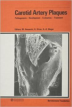 Carotid Artery Plaques: Pathogenesis - Development - Evaluation - Treatment Workshop Organized By The Bertelsmann Foundation And The Department Of ... Of Dusseldorf, Gutersloh, January 1987. por M. Hennerici epub