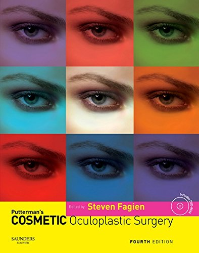 Carbon Eyelids (Putterman's Cosmetic Oculoplastic Surgery E-Book)