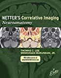 Netter's Correlative Imaging: Neuroanatomy: with