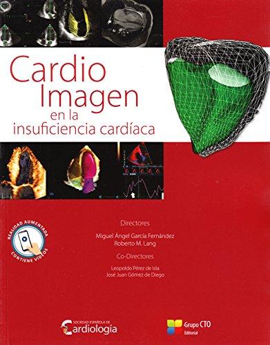 Cardio Imagen en la Insuficiencia Cardiaca by CTO Editorial, S.L.