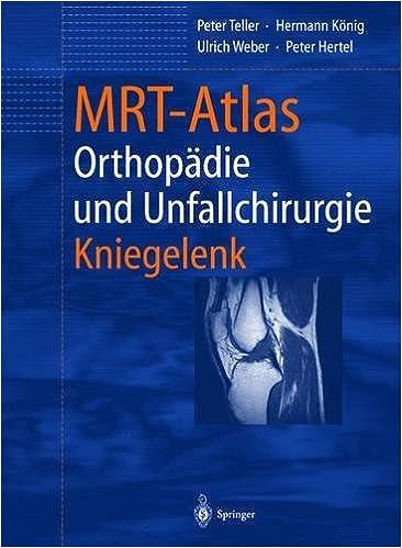 Utorrent Español Descargar Mrt-atlas Orthopadie Und Unfallchirurgie: Kniegelenk Archivos PDF