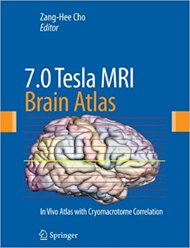 70 Tesla Mri Brain Atlas In Vivo Atlas With Cryomacrotome
