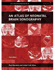An Atlas of Neonatal Brain Sonography