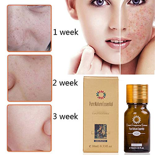 Birdfly 2 Pcs Brightening Dark Spots Removal Age Hyper Pigmentation Extract Acne Scars Marks Treatment Facial Freckle Essential Oil -