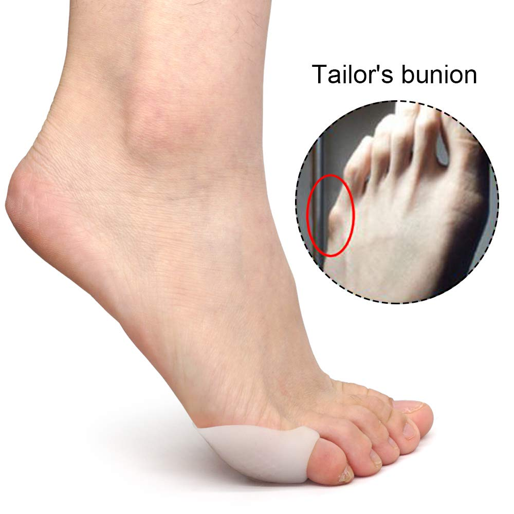 Skyfoot's Tailor\'s Bunion Pads - Set of 6 Soft Bunionette Toe Pads - Toe Bunion Corrector Pad for Foot Pain Relief (Little Toe)