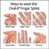 Oval-8 Finger Splint Graduated Set