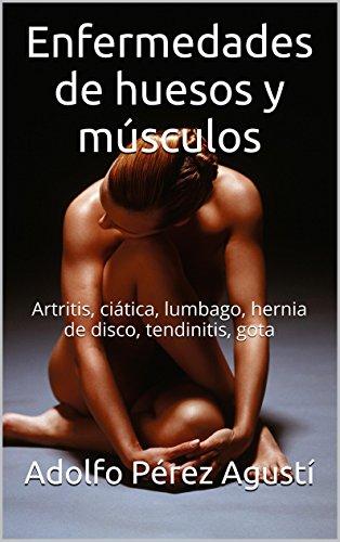 Descargar Libro Enfermedades De Huesos Y Músculos: Artritis, Ciática, Lumbago, Hernia De Disco, Tendinitis, Gota Adolfo Pérez Agusti