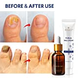 BEALUZ Fungal Nail Treatment Liquid and Cream