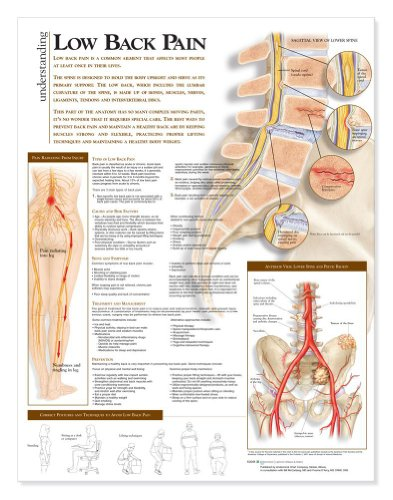 Low Back Pain Poster - 6