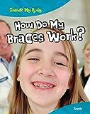 How Do My Braces Work?, Steve Parker, 1410940306