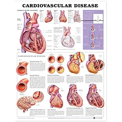 Cardiovascular Disease Anatomical Chart: Anatomical Chart Company: Industrial & Scientific