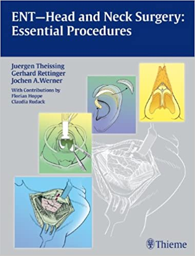 Ent head and neck surgery essential procedures amazon ent head and neck surgery essential procedures amazon juergen theissing 9783131486219 books ccuart Images
