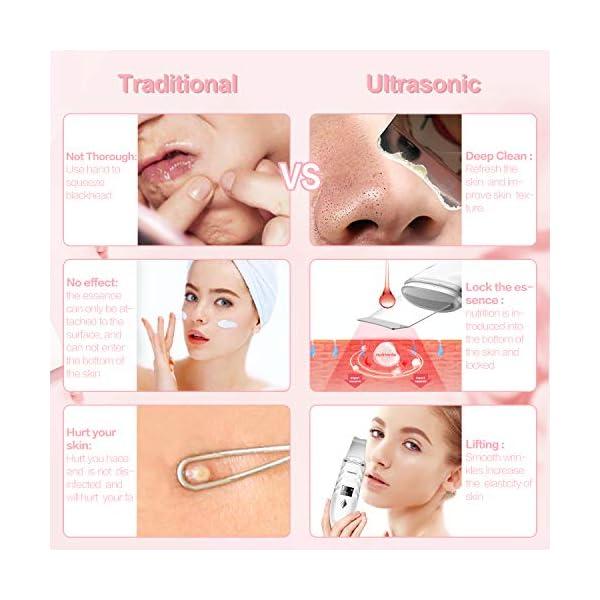 Skin Scrubber, JOMARTO Electric Ultrasonic Facial Spatula, Portable USB Rechargeable LED screen Face Skin Spatula with 4…