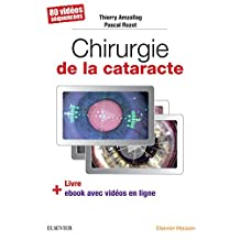 Chirurgie de la cataracte - CAMPUS (French Edition)