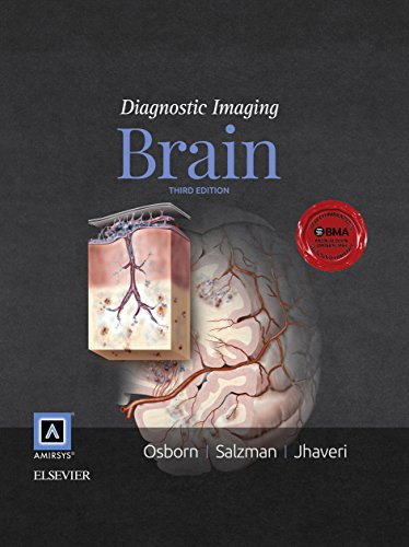 Diagnostic Imaging: Brain E-Book - http://medicalbooks.filipinodoctors.org