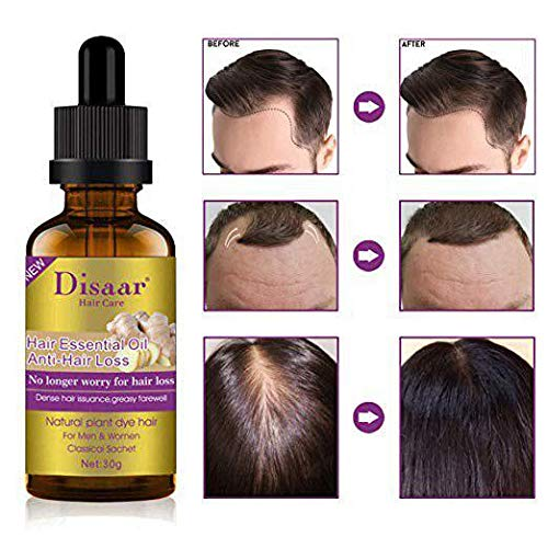 Amazon Com Disaar Beauty Natural Hair Growth Serum Ginger Essential Oil Hair Growth Oil Anti Hair Loss Essence Hair Thinning Treatment Healthy Strong Thick Hair Treats Baldness Weak Brittle Thinning Hair