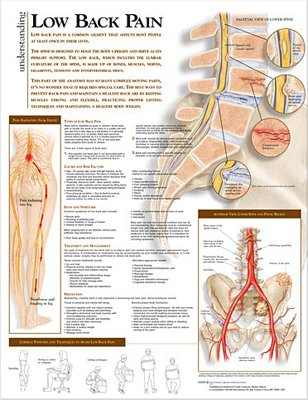 Low Back Pain Poster - 2