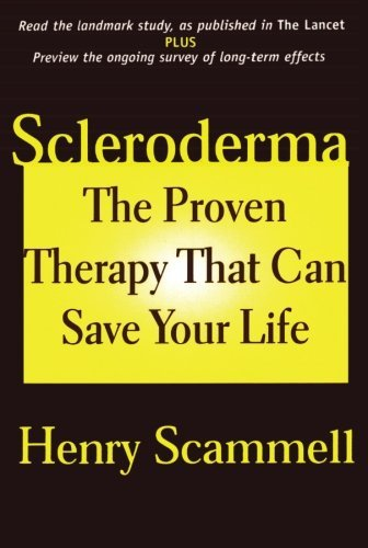 scleroderma-the-proven-therapy-that-can-save-your-life