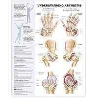 Understanding Arthritis Anatomical Chart