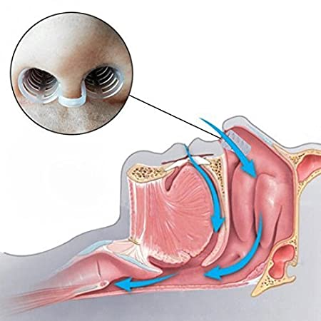 Sistema de solución contra el ronquido, profesional eficaz para dejar de roncar Dispositivos de ayuda para dormir Contiene correa para la barbilla + ...