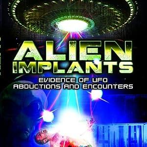 Alien Implants Radio/TV Program