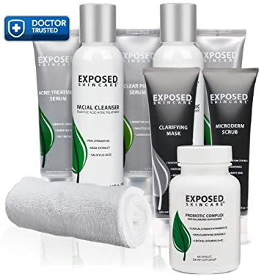 Exposed-Skin-Care-Exposed-Acne-Treatment-Ultimate-Kit