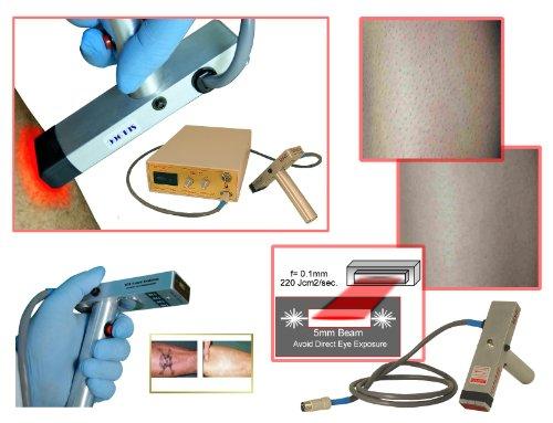 SDL90ec Epidermal Contact Laser for Hair Removal, Skin Resurfacing, Tattoo Erasure by Avance (Image #5)