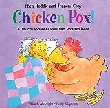 Chicken Pox!