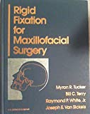 Rigid Fixation for Maxillofacial Surgery