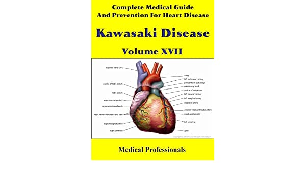 Complete Medical Guide and Prevention for Heart Disease Volume XVII; Kawasaki Disease