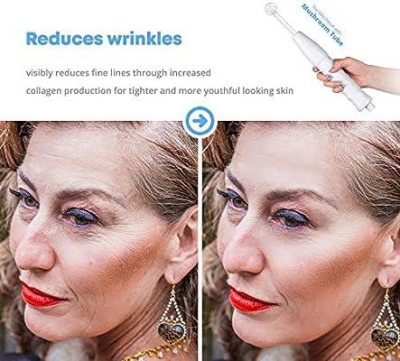 NuDerma Portable Handheld High Frequency Skin Therapy Wand Machine w/Neon - Acne Treatment - Skin Tightening - Wrinkle Reducing - Dark Circles - Puffy Eyes - Hair Follicle Stimulator