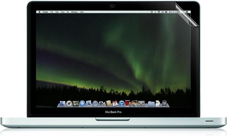 Kwmobile Folie Matt Für Apple Macbook Pro Retina 15 Computer Zubehör
