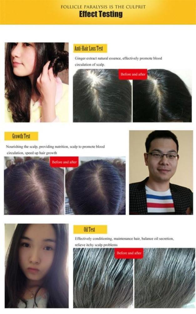 Amazon.com: ltrottedj crecimiento del pelo Essence, avanzado ...
