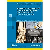 Tomografía Computarizada Multicorte en Patología Musculoesquelética: Guía