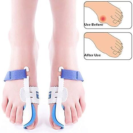 Juanetes separador de dedos ortopédica apoyo férula nocturna disipador de pie para Hallux Valgus alivio del