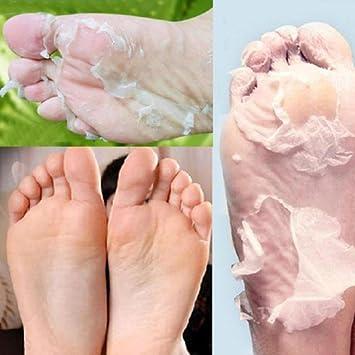 hard dead skin on foot