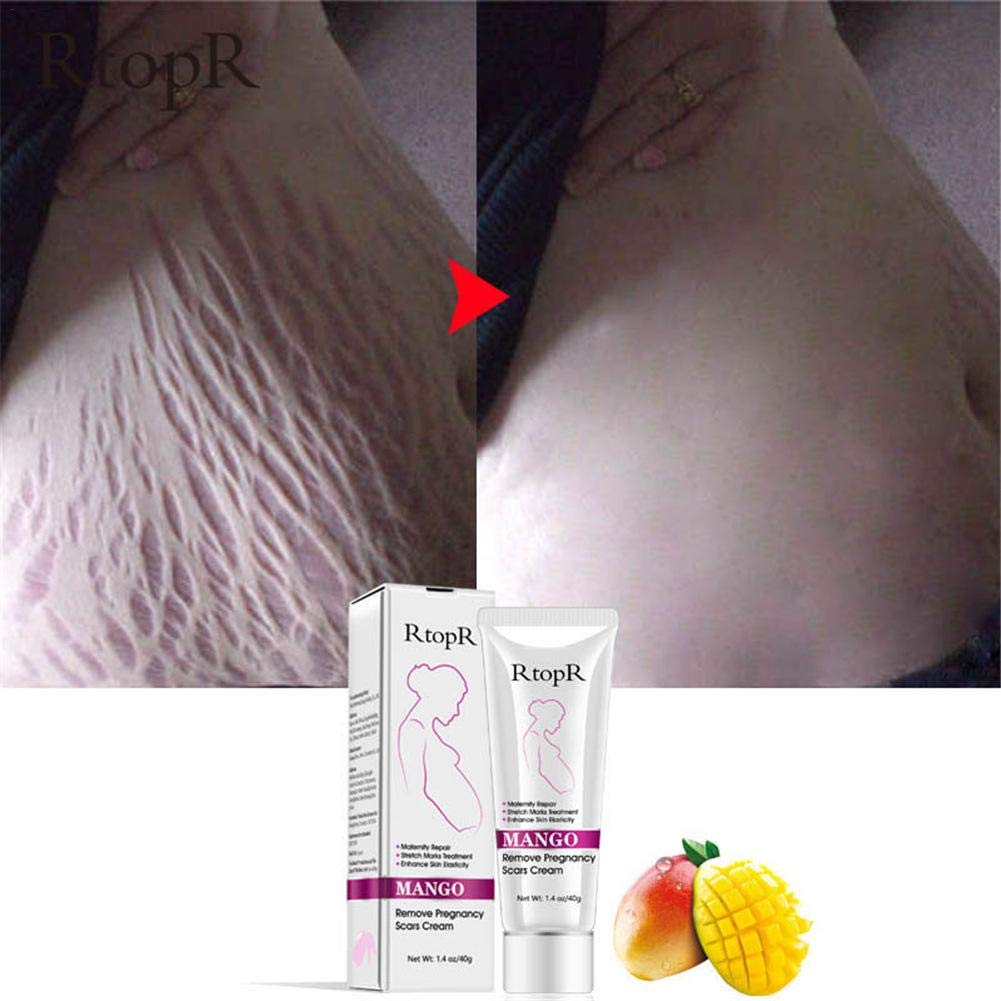 Amazon Com Enjoyment Scars Removal Cream Stretch Marks Cream