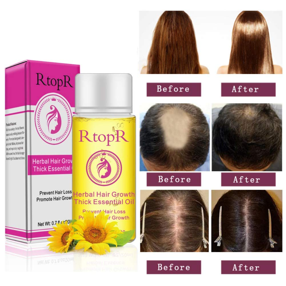 Hair Oil Shouhengda Herbal Hair Growth Thick Essential Oil Anti-Hair Loss Promote Hair Growth Repair Dry and Frizzy Hair