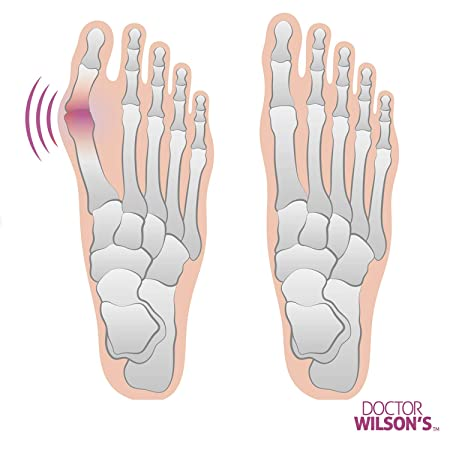 Amazon.com: Bunion Corrector - Bunion Relief Pads Sleeve - Bunion Splint Orthopedic Bunion Corrector Socks - With Gel Pad Elastic Cushions Long- Lasting for ...