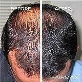 HairMax Hair Growth Laser Band LaserBand 82