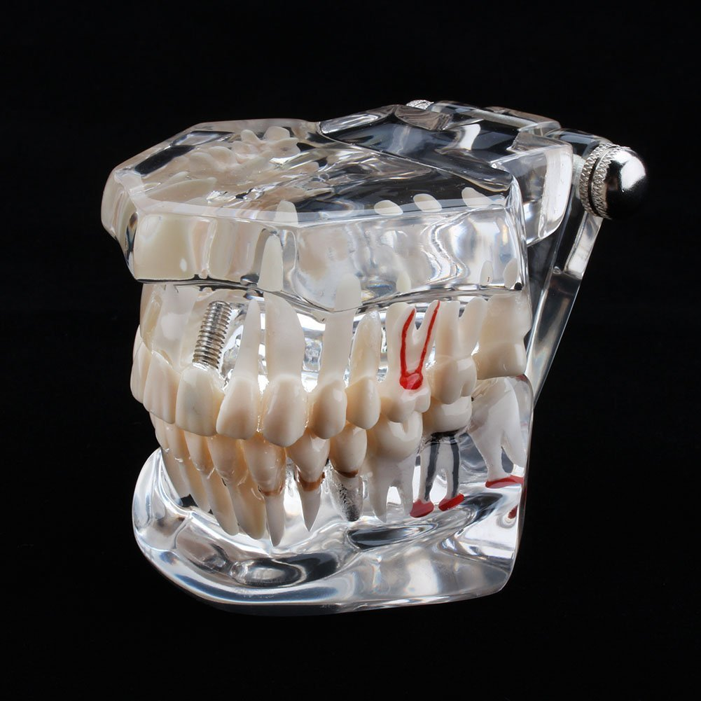 Dental Tooth Model,Transparent Adult Pathologies Dental Study Teaching Teeth Model Dental Implant Disease Teaching Tools with Removable Tooth