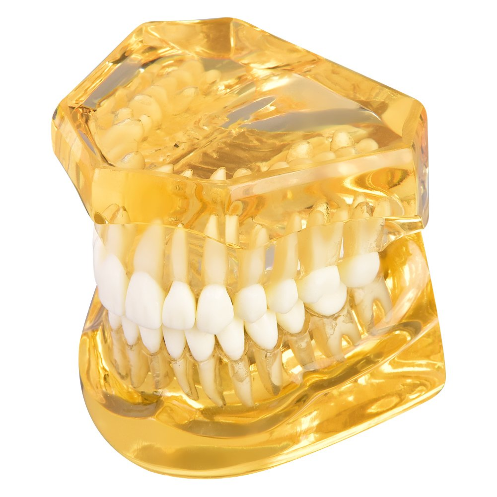 Transparent Dental Implant Disease Removable Standrard Teeth Model Demonstration Pathological Educational Tooth Teaching Tools Wal front