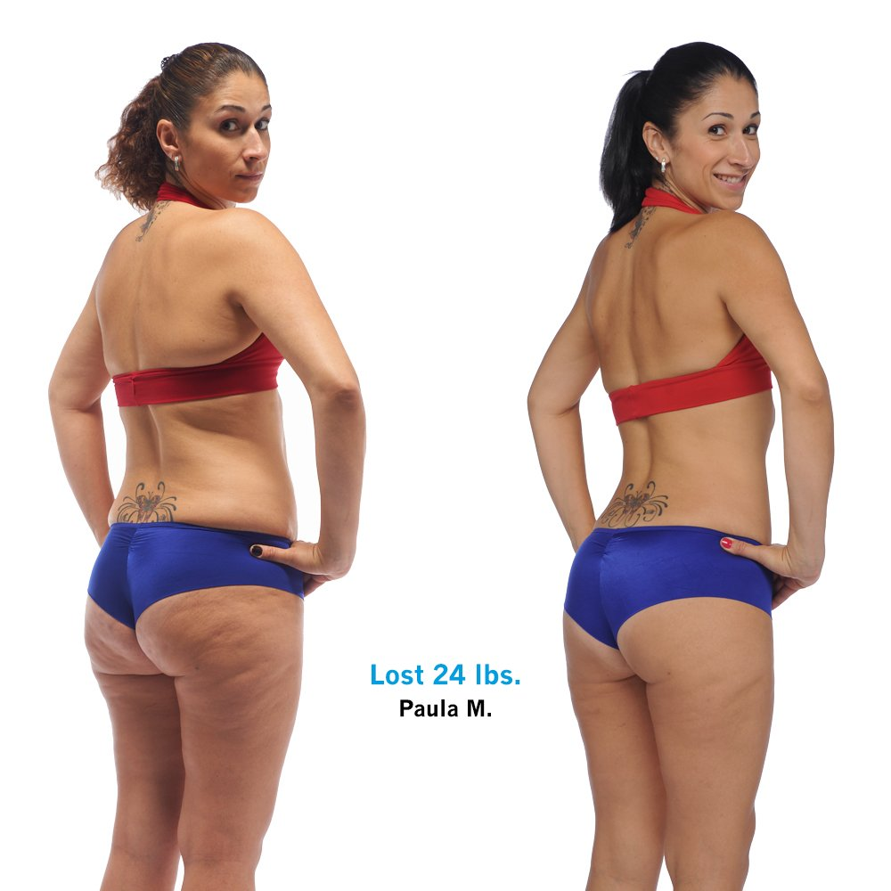 Leading Plastic Surgeons Announce Formal Review Into Brazilian Butt Lift Operations