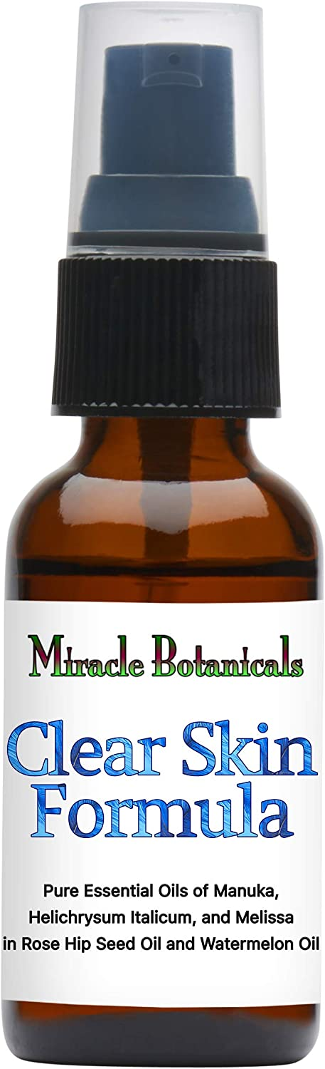 Miracle Botanicals Clear Skin Forumla- 100% Pure Essential Oil and Carrier Oil Blend - Therapeutic Grade.30ml/1oz